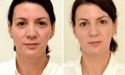 Így változik meg az arcod, ha sok vizet iszol!