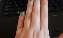 Kicsit fura a barátnőm keze